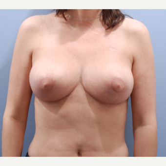 35-44 year old woman treated with Breast Reduction after 3645088