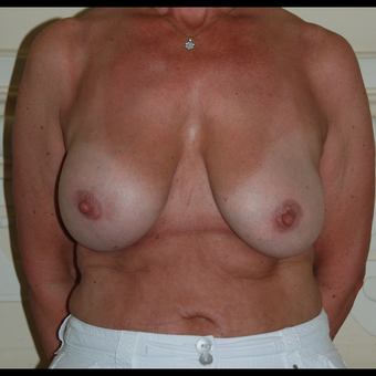 Removal /Replacement Breast Implants and Bilateral Mastopexy