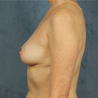 Natural breast augmentation with mommy makeover in patient over 50 before 3345290