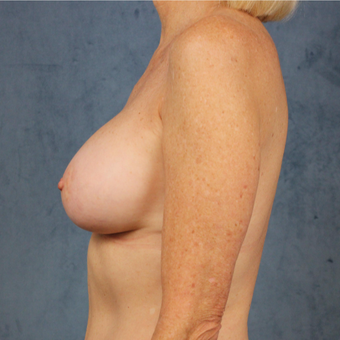 Natural breast augmentation with mommy makeover in patient over 50 after 3345290