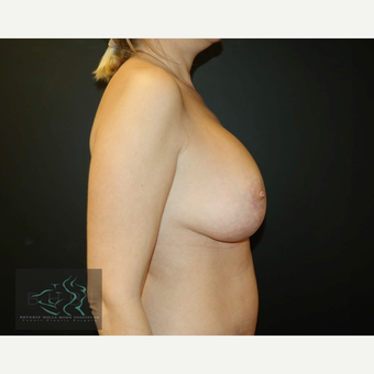 45-54 year old woman treated with Breast Lift after 3591203