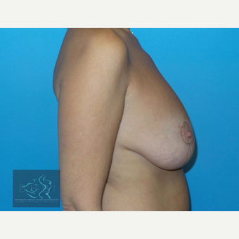 45-54 year old woman treated with Breast Lift before 3591203