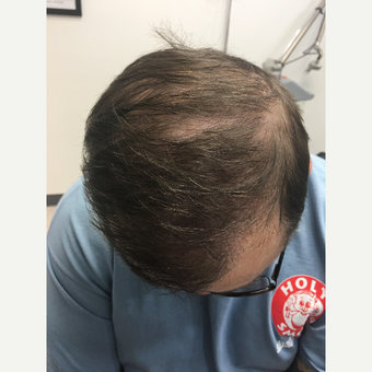 45-54 year old man treated with ARTAS Robotic Hair Transplant after 3710686