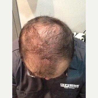 45-54 year old man treated with ARTAS Robotic Hair Transplant before 3710686