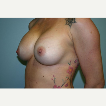 Breast Augmentation before 3444132