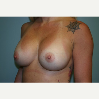Breast Augmentation after 3444132