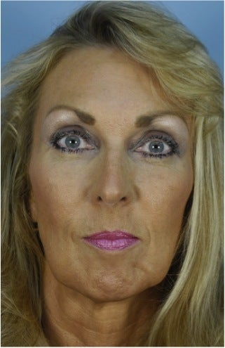 49 year old woman who wanted improvement of the lower face and neck before 1287537