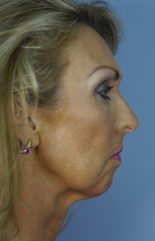 49 year old woman who wanted improvement of the lower face and neck 1287537