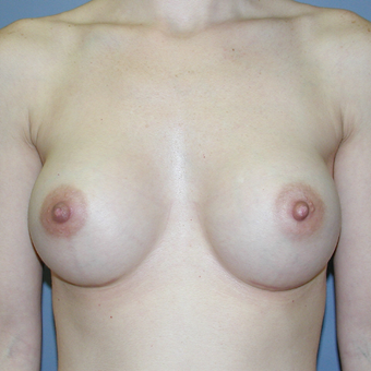 33 year old woman treated with Breast Implants after 3041745
