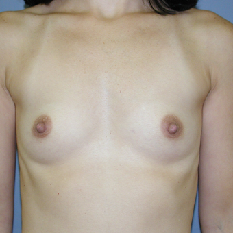33 year old woman treated with Breast Implants before 3041745