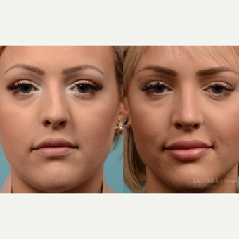 25-34 year old woman treated with Rhinoplasty before 3821353