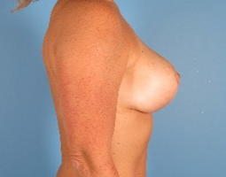 35-44 year old woman treated with Breast Reduction 1939307