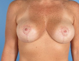 35-44 year old woman treated with Breast Reduction after 1939307