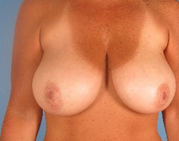 35-44 year old woman treated with Breast Reduction before 1939307