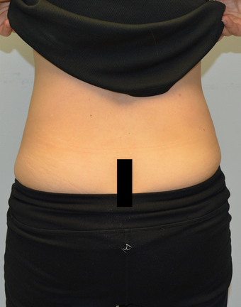 Coolsculpting treatment for love handles 12 weeks after one treatment after 1439709