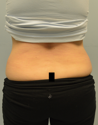 Coolsculpting treatment for love handles 12 weeks after one treatment before 1439709
