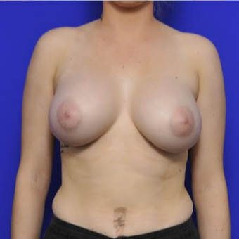 35-year-old woman treated with Breast Augmentation after 3332476