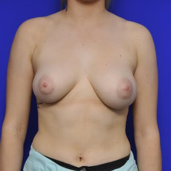 35-year-old woman treated with Breast Augmentation before 3332476