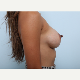 Breast Augmentation after 3459793
