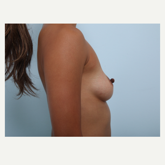 Breast Augmentation before 3459793