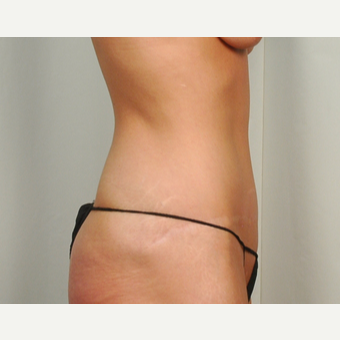 35-44 year old woman treated with Tummy Tuck after 3026099