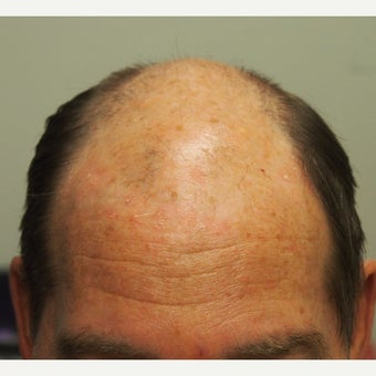 55-64 year old man treated with Scalp Micropigmentation wanted a very subtle shaved look before 2465622