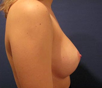 Bilateral Breast Augmentation  -  Pre- & 3 Years and 9 months Post-op 3473964