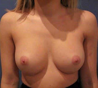 Bilateral Breast Augmentation  -  Pre- & 3 Years and 9 months Post-op after 3473964