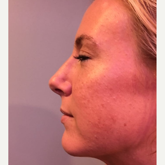 25-34 year old woman treated with Rhinoplasty after 3541080