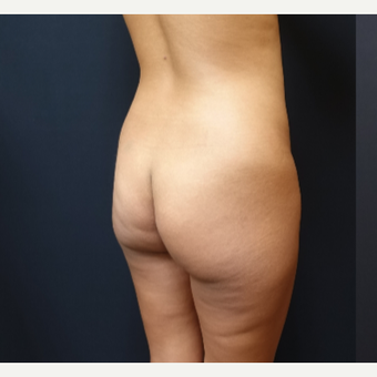 25-34 year old woman treated with Butt Lift before 3731810