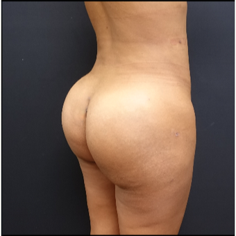 25-34 year old woman treated with Butt Lift after 3731810