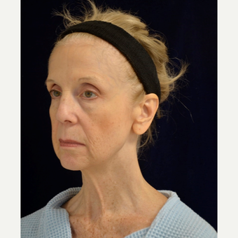 65-74 year old woman treated with Facelift, facial fat transfer and upper and lower blepharoplasties before 3604327