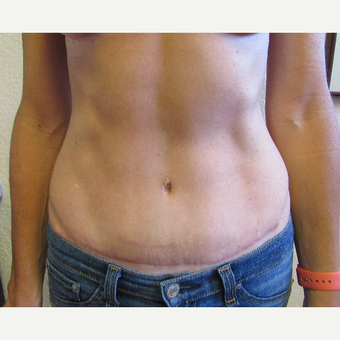 45-54 year old woman treated with Tummy Tuck after 3407137