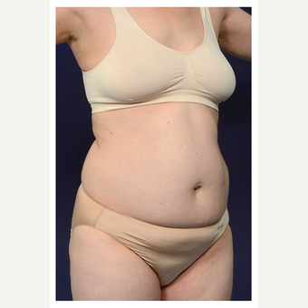 35-44 year old woman treated with Tummy Tuck before 3174267