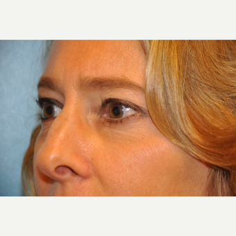 45-54 year old woman treated with Upper and Lower Eyelid Surgery after 3075345