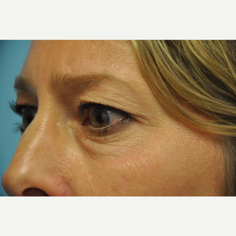 45-54 year old woman treated with Upper and Lower Eyelid Surgery before 3075345
