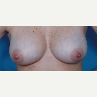 25-34 year old woman treated with Breast Augmentation after 3629394