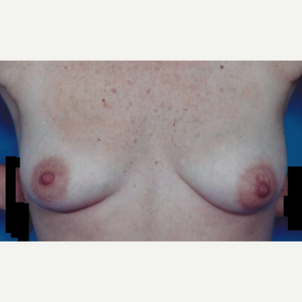 25-34 year old woman treated with Breast Augmentation before 3629394
