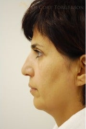 35-44 year old woman treated with Rhinoplasty before 3259377