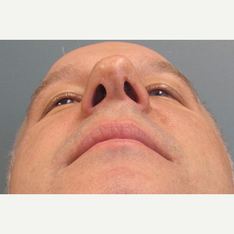 45-54 year old man treated with Rhinoplasty after 3713676
