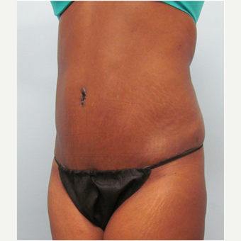 45 year old woman treated with Tummy Tuck after 3680186