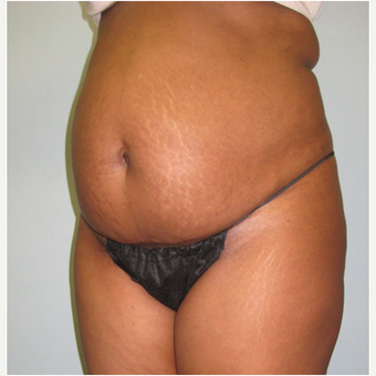 45 year old woman treated with Tummy Tuck before 3680186