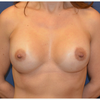 45-54 year old woman treated with Breast Reconstruction after 3136607