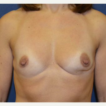 45-54 year old woman treated with Breast Reconstruction before 3136607