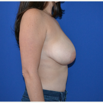 35-44 year old woman treated with Breast Reduction before 3744085