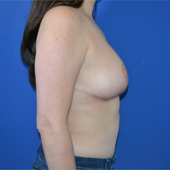 35-44 year old woman treated with Breast Reduction after 3744085