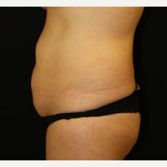 35-44 year old woman treated with Tummy Tuck 1839096