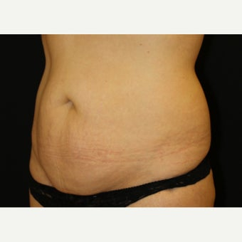 35-44 year old woman treated with Tummy Tuck before 1839096