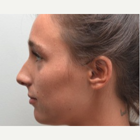 18-24 year old woman treated with Rhinoplasty before 3747732