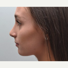18-24 year old woman treated with Rhinoplasty after 3747732